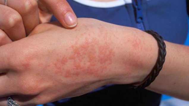 vidy-allergii-u-vzroslogo